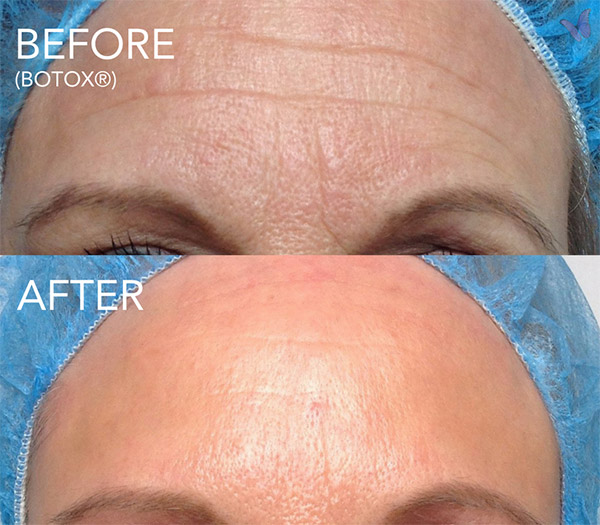 Botox For Head Before After