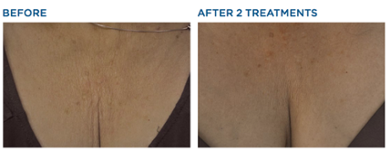 Chest before after Exilis Skin Tightening laser