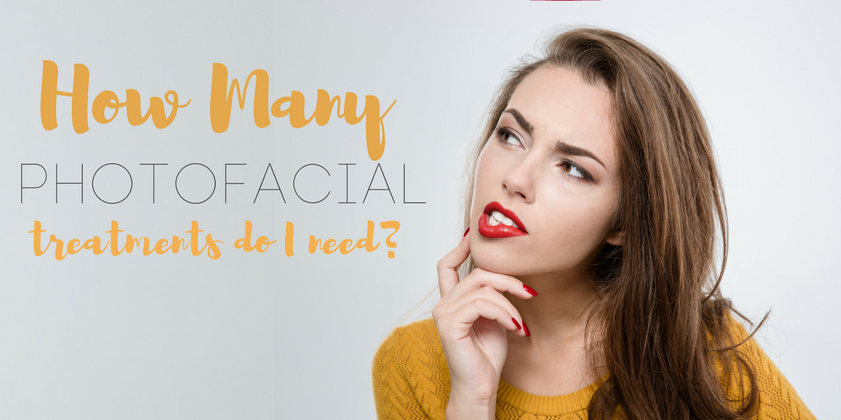 How Many Photofacial Treatments Do You Need?