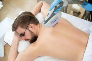 man laser hair removal back laser treatments no shaving