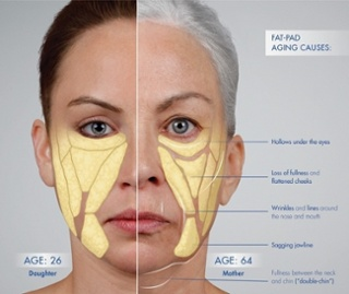 Comprehensive List of Facial Fillers | Pricing, Longevity