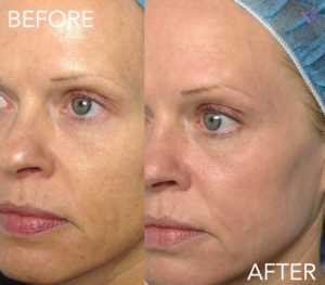 microneedling before and after image skin care acne scarring