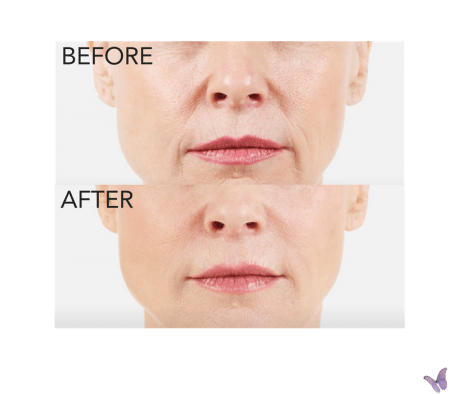 juvederm vollure filler for midface